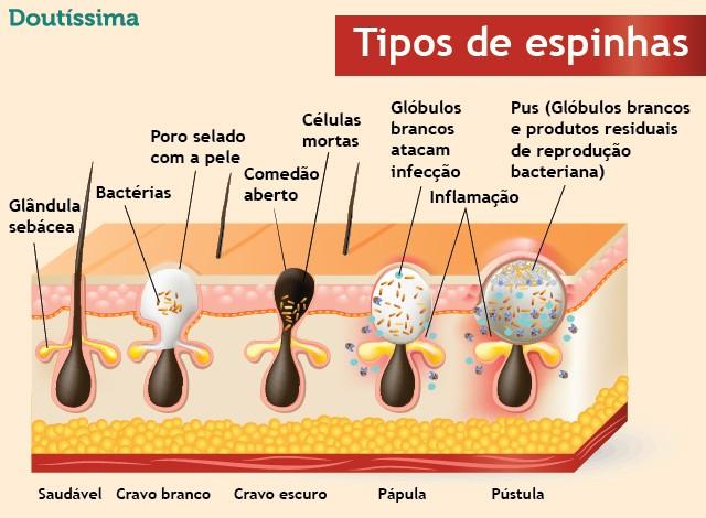 acne-na-vida-adulta