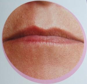 labios retraidos