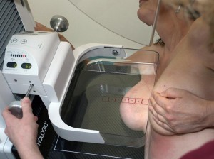 como funciona a mamografia
