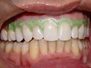 Curiosidades Sobre O Clareamento Dental Fortissima