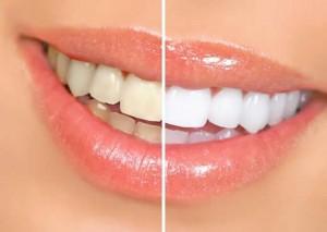 como-clarear-os-dentes-e-ficar-com-um-sorriso-lindo-4