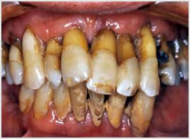gengivite-periodontite-4