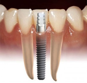 implante-1