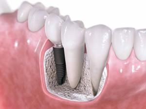 implante-2