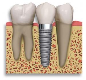 implantes-1
