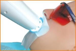 preco clareamento dental-2
