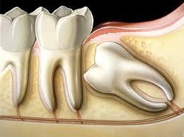 terceiro molar-1