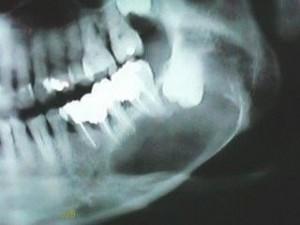 terceiro molar-2