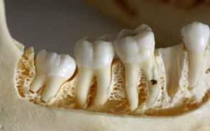 terceiro molar-4