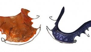 Orange and Blue Retainers