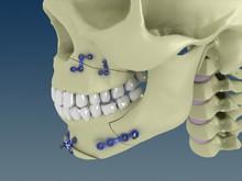 cranio-3