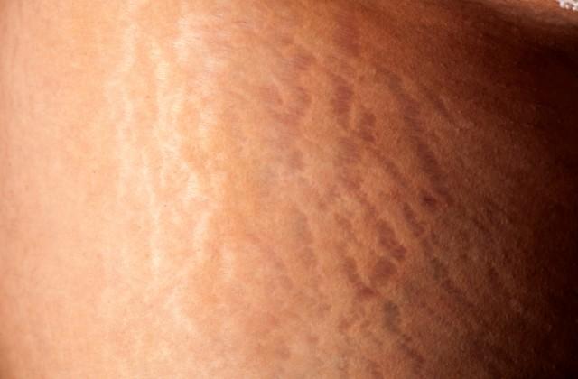 estrias na pele