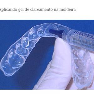 Semen Humano Clareia Os Dentes Fortissima