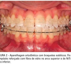 aparelho dentário colorido
