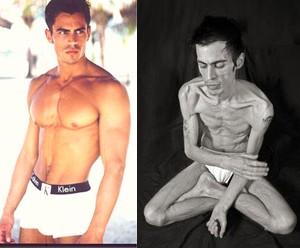 Anorexia Masculina - farpasebitaites blogspot  com