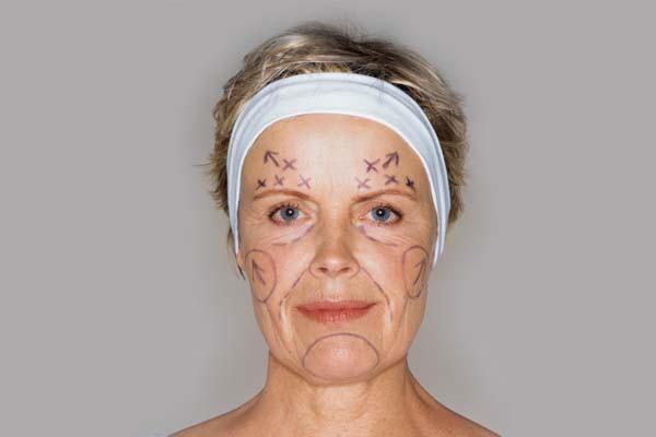 cirurgia-plastica-terceira-idade