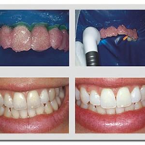 Perguntas E Respostas Clareamento Dental Fortissima