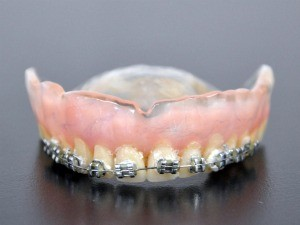 denta-2