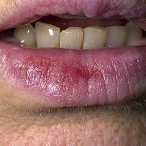 dermnet_photo_of_actinic_cheilitis