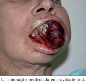 glandula-1