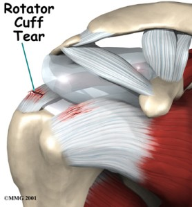 shoulder_rotator_cuff_symptoms011