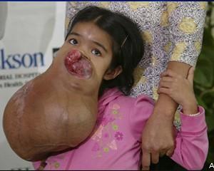 tumor-3