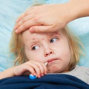 Catapora é altamente contagiosa e atinge principalmente as crianças