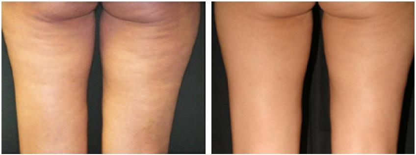 cellulite-antes-depois