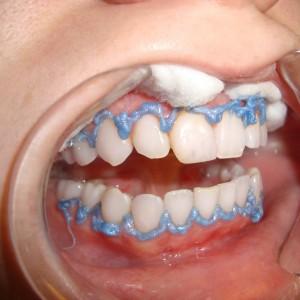 Saiba Mais Sobre O Gel Clareador De Dentes E Seus Efeitos Fortissima