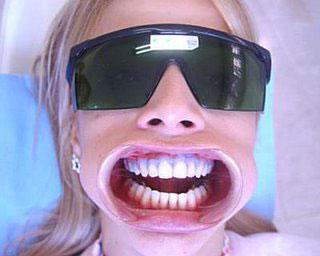 Quanto E Seguro O Clareamento Dos Dentes Fortissima