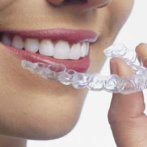 clareamento-dental-caseiro-1