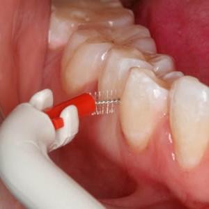 f6e576ae6 O ponto que deveria ser questionado pelos pacientes e leitores é  eu sei  usar o fio dental  Eu utilizo com a frequência e eficiência necessárias