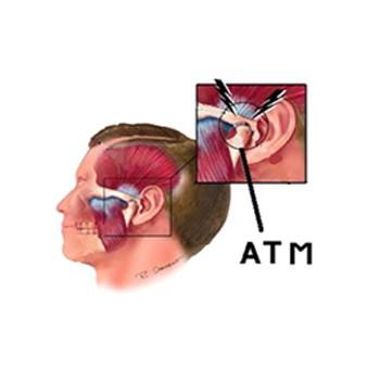 fisioterapia-da-atm