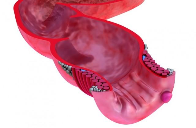hemorroida