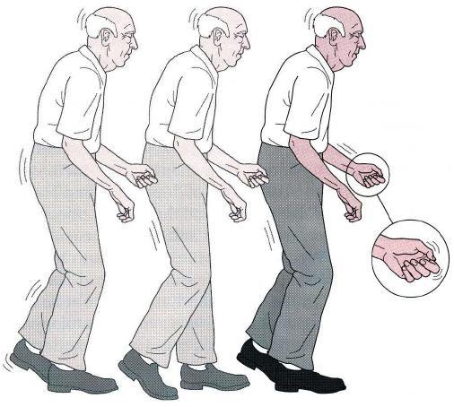 Parkinson-1-12