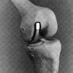 artrose 4