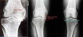 artrose 5