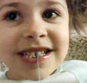 dentes-1