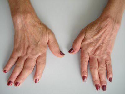 o que é artrite reumatoide