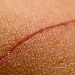 eliminar-cicatrizes-comremedios-caseiros2