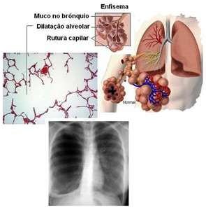 enfisema pulmonar 22