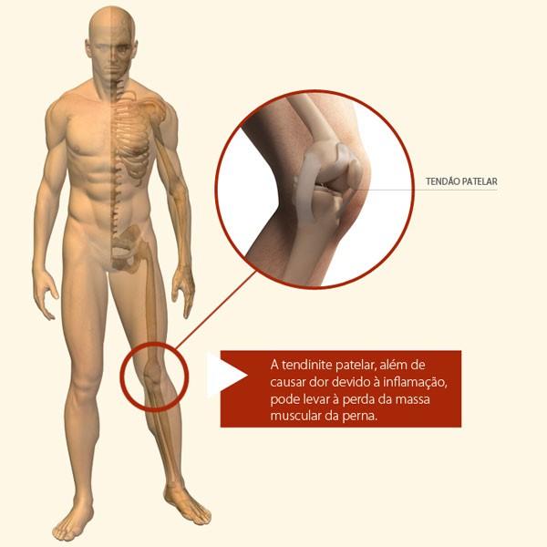 info-clinica-joelho-tendinite-patelar