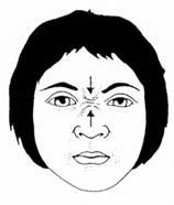 paralisia-facial-fisioterapia_clip_image004