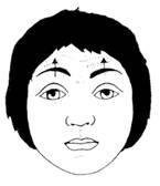 paralisia-facial-fisioterapia_clip_image006