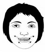 paralisia-facial-fisioterapia_clip_image012