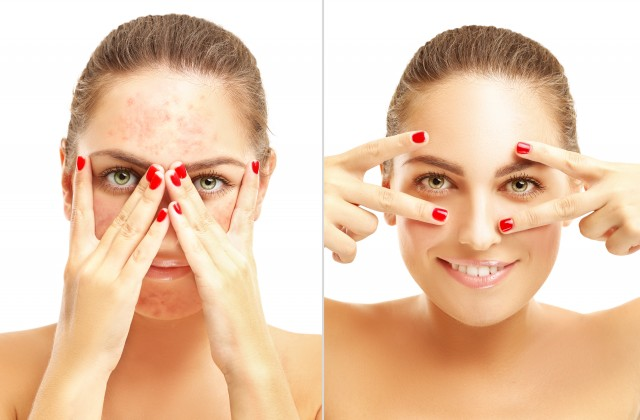 marcas acne