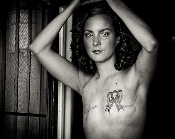auto-estima no tratamento de câncer de mama