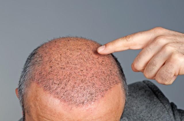 Os resultados do implante de cabelo podem demorar até um ano para serem percebidos