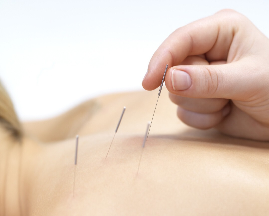 tratamento com acupuntura