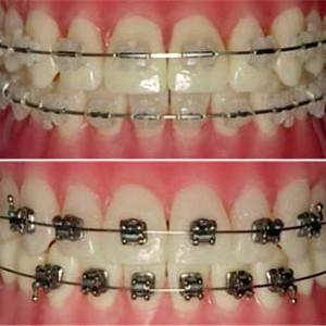Click Odontologia Avançada - Posts | Facebook